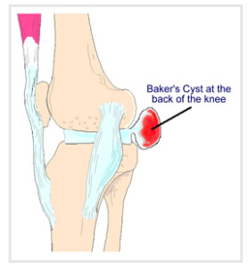 best how to get rid of bakers cyst behind knee naturally image