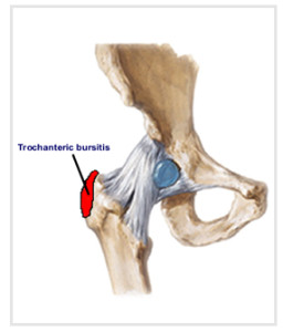 bursitis shoulder steroid injection