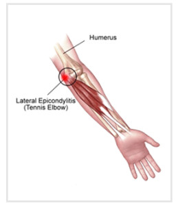 lateral_epicondylitis