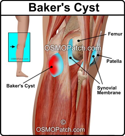 baker s cyst treatment osmo patch us