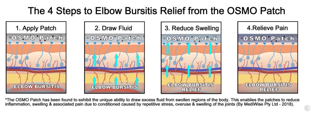 Elbow Bursitis Relief - OSMO Patch