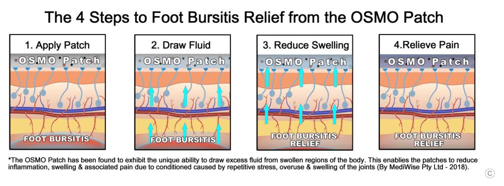 Foot Bursitis Relief - OSMO Patch