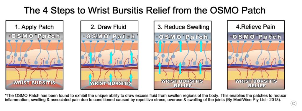 \Wrist Bursitis Relief -- OSMO Patch
