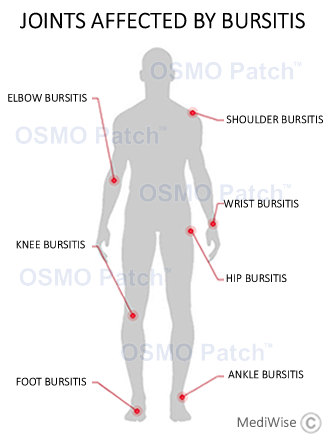 Bursitis Treatment OSMO Patch