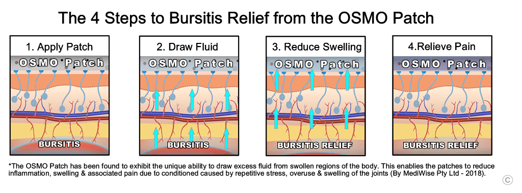 Bursitis Relief stages - OSMO Patch