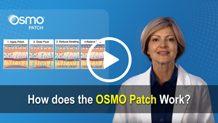 How does the OSMO Patch work?