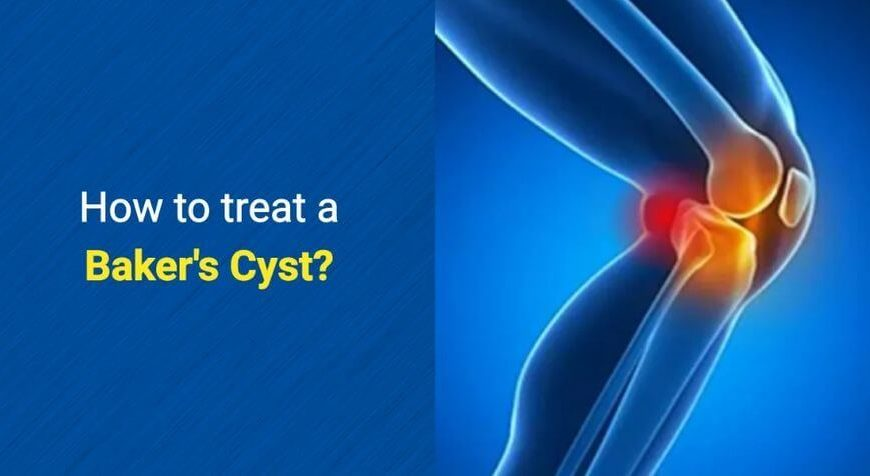 How to treat a Baker's Cyst by OSMO Patch