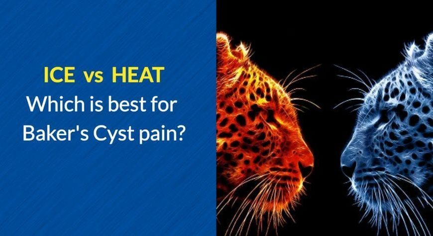 ICE or HEAT for Baker's Cyst Pain by OSMO Patch