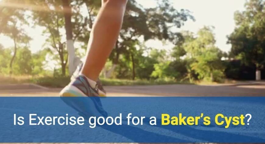 Is exercise good for a Baker's Cyst by OSMO Patch