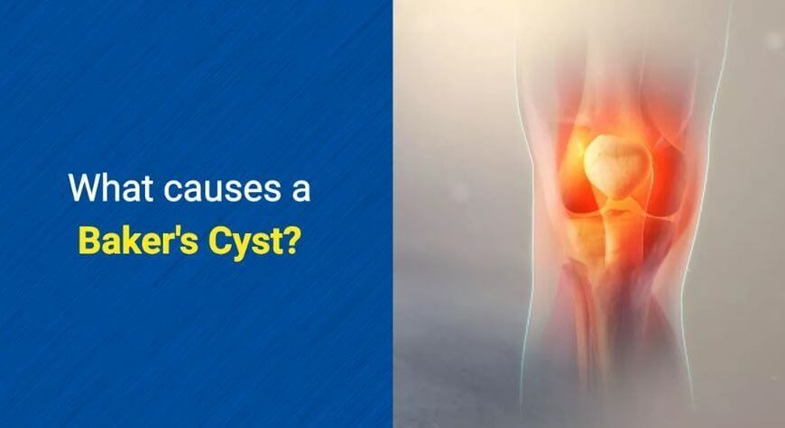 What causes a Baker's Cyst by OSMO Patch