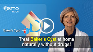 Treat Baker's Cyst naturally at home with the OSMO Patch
