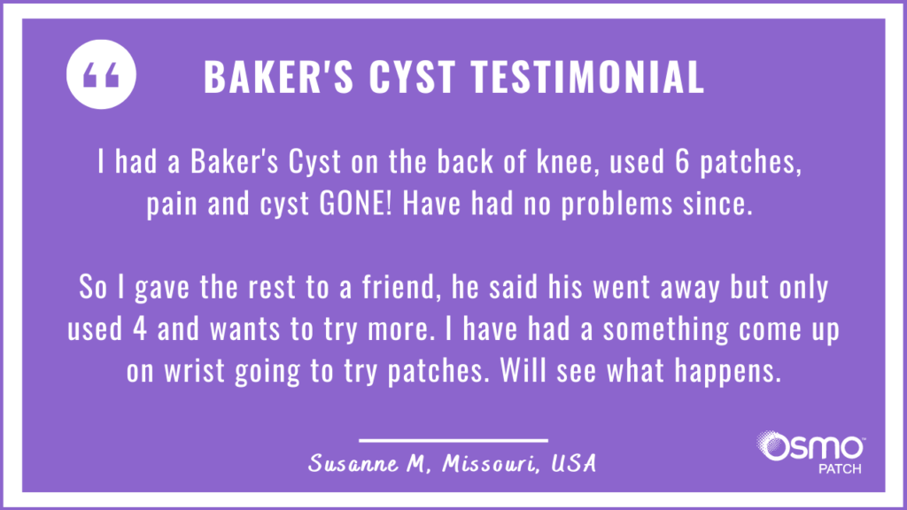 Testimonial: Baker's Cyst treatment with the OSMO Patch. Pain and Cyst gone!
