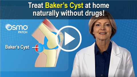 Treat Baker's Cyst at home naturally without drugs!